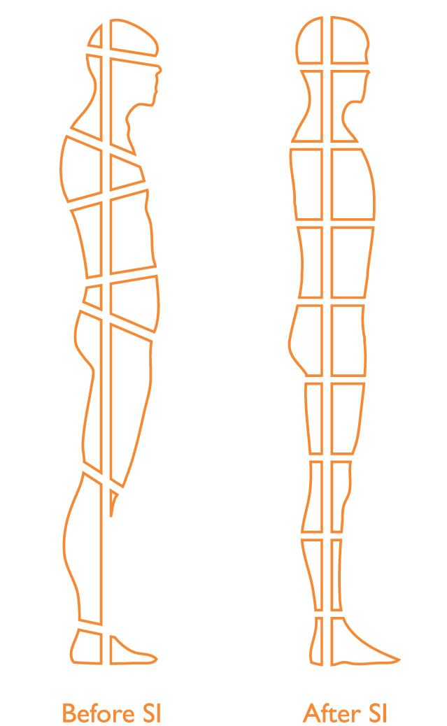 Diagram Showing Before and After Structural Integration Posture